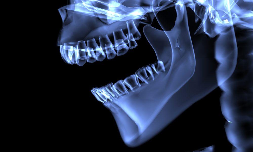 Distraction Osteogenesis
